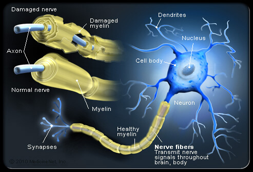 multiple-sclerosis-s4-illustration-of-nerve-fibers-and-myelin-attack-in-ms